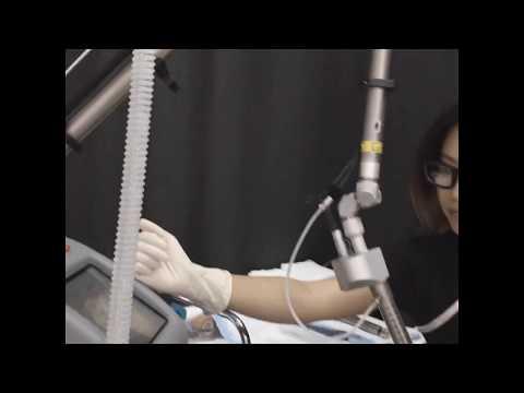MonaLisa Touch Procedure - Dr Thuy Laser Skin Care Australia