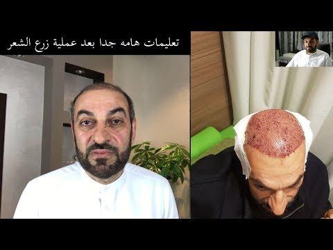 تجربتي مع زراعة الشعر وتعليمات وارشادات قد تسمعها لاول مرة .Hair Transplant in Turkey
