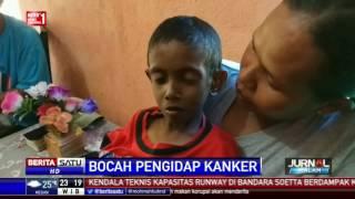 Dokter 24 - Sering Begadang Itu Picu Kanker Hati !.