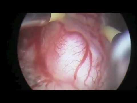 Myoma G2 Resectoscopy Ricciardi HEOS Sopro Comeg