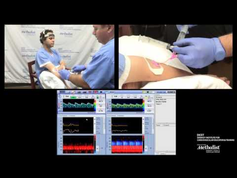 TCD Bubble Test For Cardiac Shunt Detection PFO Test