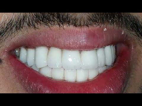 In Just 1 Brush Whiten Yellow Teeth Like Pearl White and ShineTeeth Whitening at Home,Secret recipe