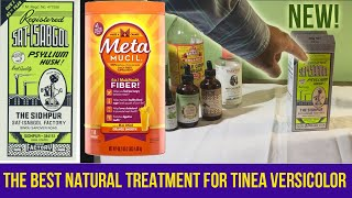 The Best Natural Treatment for Tinea Versicolor (Skin Fungus) using Psyllium Husk -