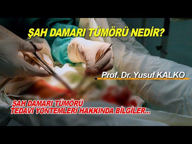 Şah Damarı Tümörü ve Belirtileri Nelerdir? | Prof. Dr. Yusuf KALKO