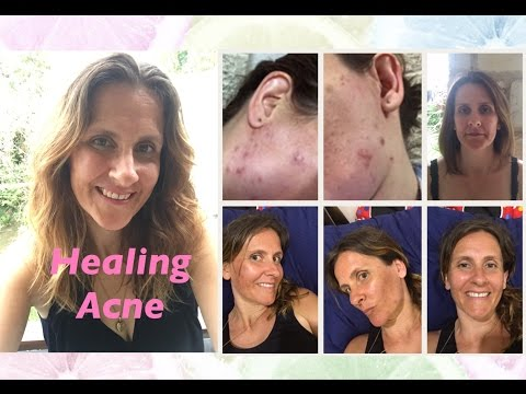 HEALING ACNE || HOW I DID IT