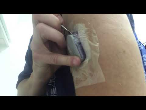 Removing Dexcom G6 transmitter from sensor