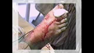 Лечение при плоскостопии и переломах пяточной кости(ООО