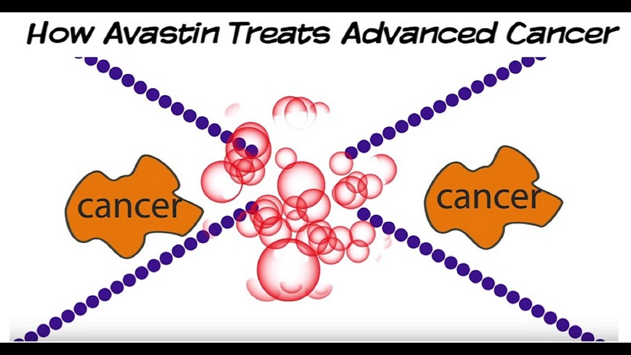 How Avastin Bevacizumab Targeted Therapy Treats Advanced Cancer Youtube
