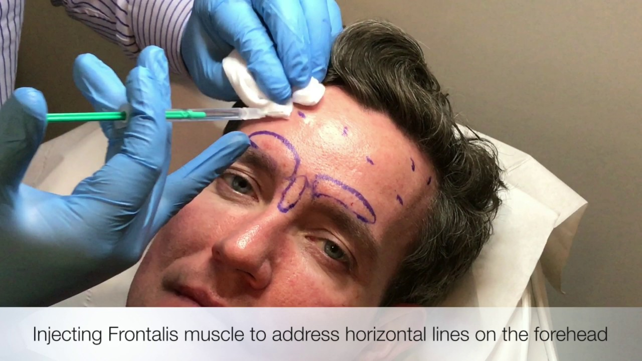 Injecting Frontalis Muscle Youtube