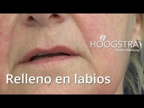 Relleno de labios (15159)