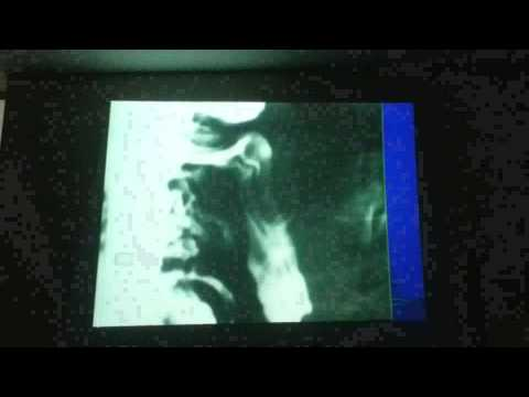 Видео Exame de transito intestinal