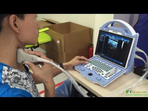 Factory Direct 2D Color Cardiac Ultrasound Machine MSLCU23 With CE Approved Video