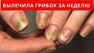 ВЫЛЕЧИЛА ГРИБОК ногтей за 1 НЕДЕЛЮ