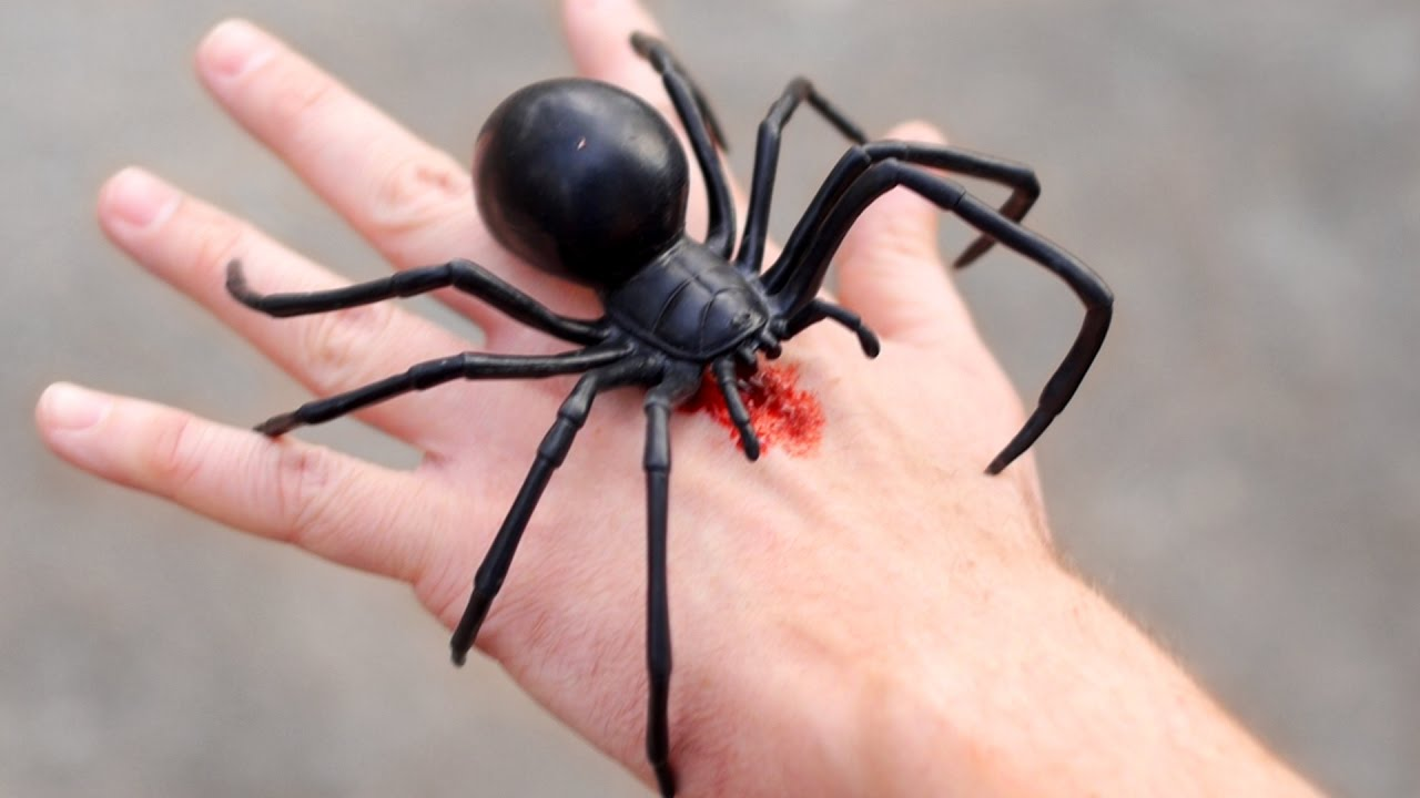 giant black widow bite youtube