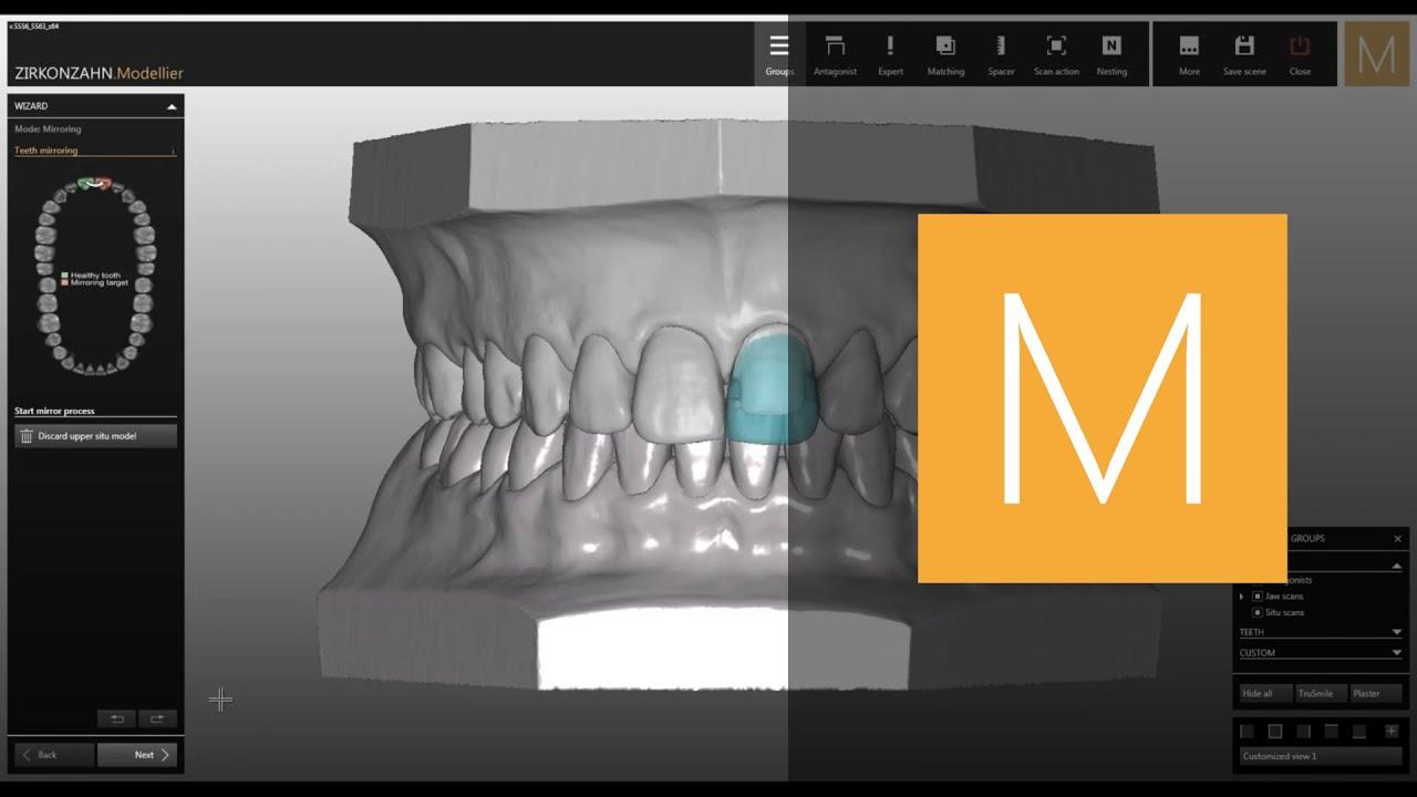 Zirkonzahn CAD/CAM Software-Module Wax-up/Situ/Mirror Imaging