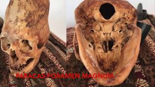 DNA Results Of The Paracas Elongated Skulls Of Peru: Part 3: Physical Anomalies