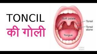 Toncil जल्दी ठीक करने वाली जोरदार दवाई   How to cure Toncil fast
