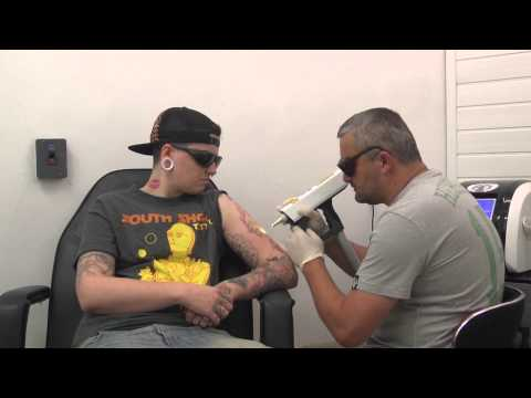 Tattoo Removal in North East Lincolnshire