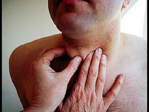 Cuáles son los síntomas de Tiroides   Especialista en C