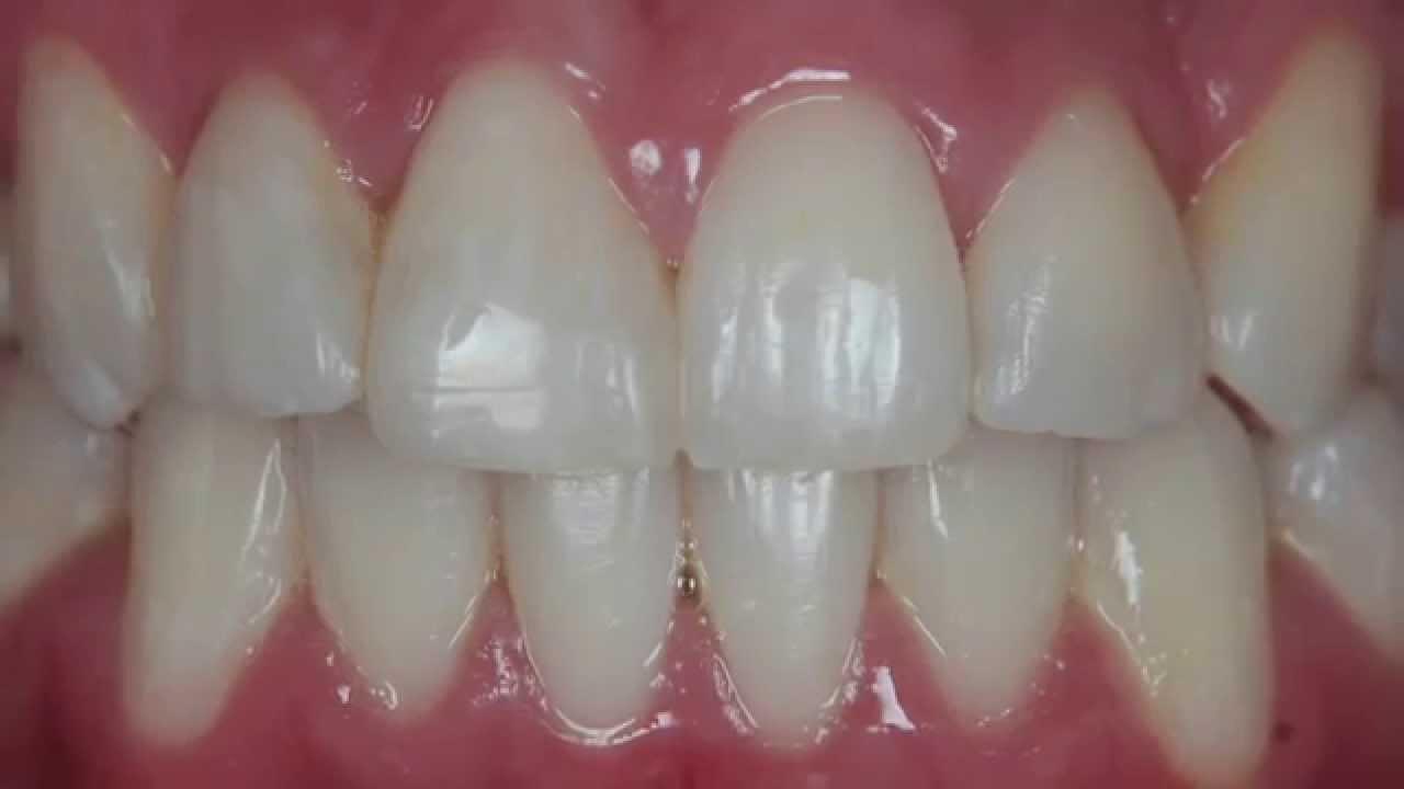 Facetas Diretas Em Resinas Compostas Clareamento Dental Youtube