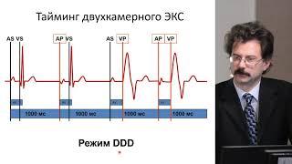 Холтеровское мониторирование пациентов со стимулятором. Часть 1: особенности заключения