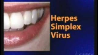 Whittier Dentist, Cold Sore Virus & Treatment, Kamran Sahabi,Cosmetic Dentist La Mirada, Buena Park Thumbnail