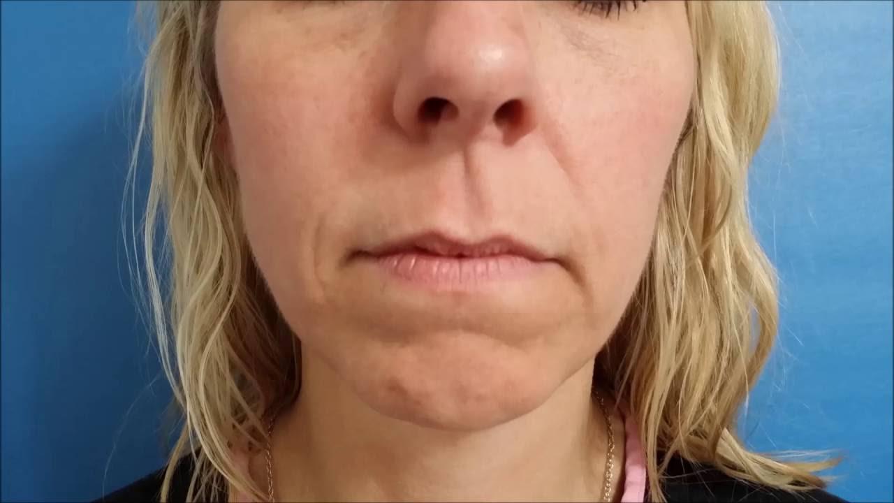 hight resolution of botox lip diagram