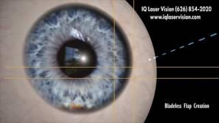 Z LASIK How Bladeless Eye Surgery Works