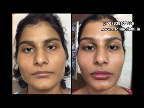 how can botox slim your face dr chetna singh