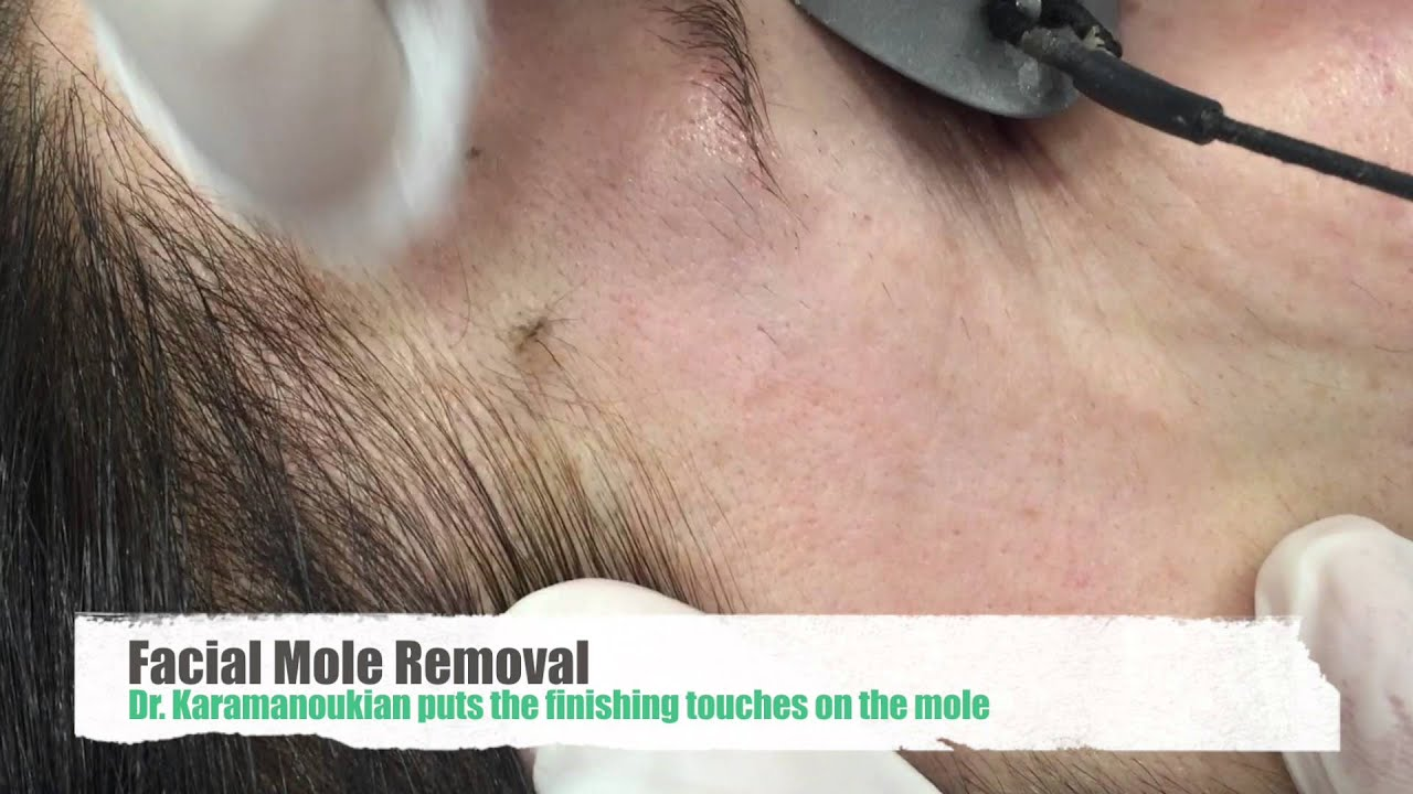 How to Remove a Flat Mole on face or body – Removal and Treatment