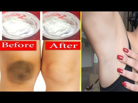 how-to-lighten-dark-knees,-dark-elbows,-dark-underarms---lighten-your-dark-body-parts-naturally
