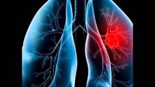 Mesothelioma photos of mesothelioma lung cancer