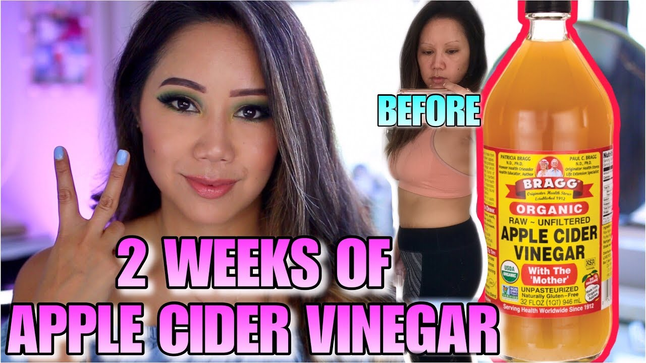 does the apple cider vinegar diet really work