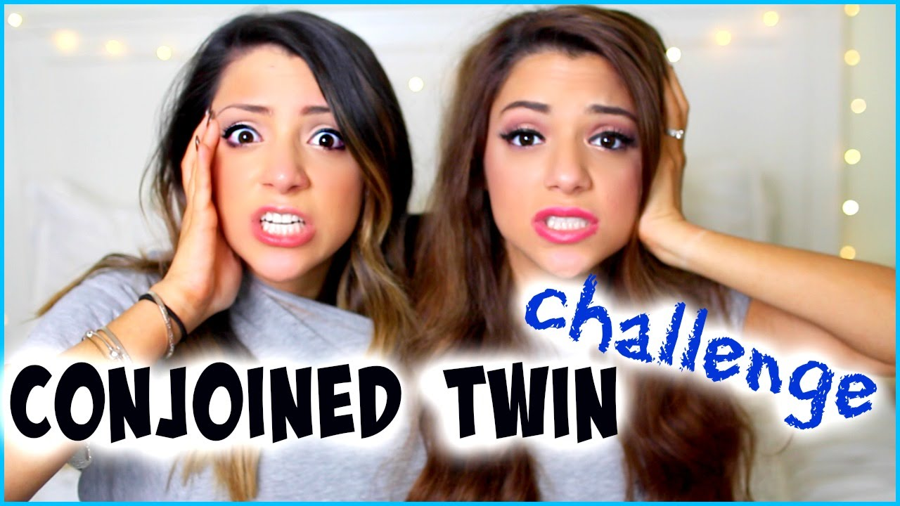 how to conjoined twins live