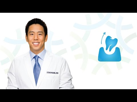 Tooth Extraction in Henderson NV: Dr. Huang | Henderson Oral Surgery & Dental Implant Center