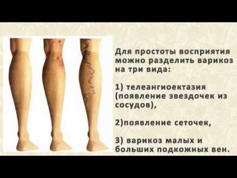 Тромбоз вен. Причины, симптомы, диагностика и лечение