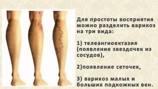 Диета при варикозе и тромбофлебите