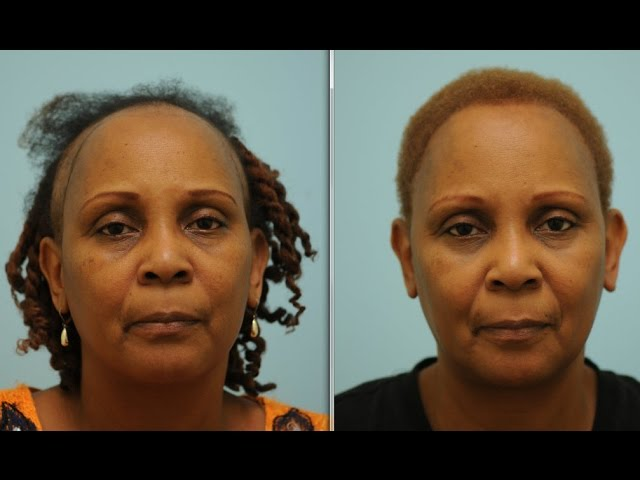 African-American Hair Transplant to Correct Chemotherapy Hair Loss Testimonial in Dallas, TX