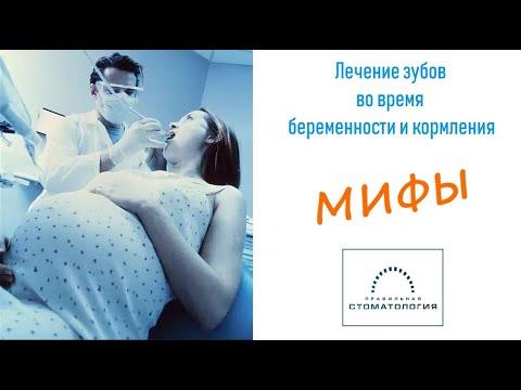 Мифы о лечение зубов во время беременности и кормления
