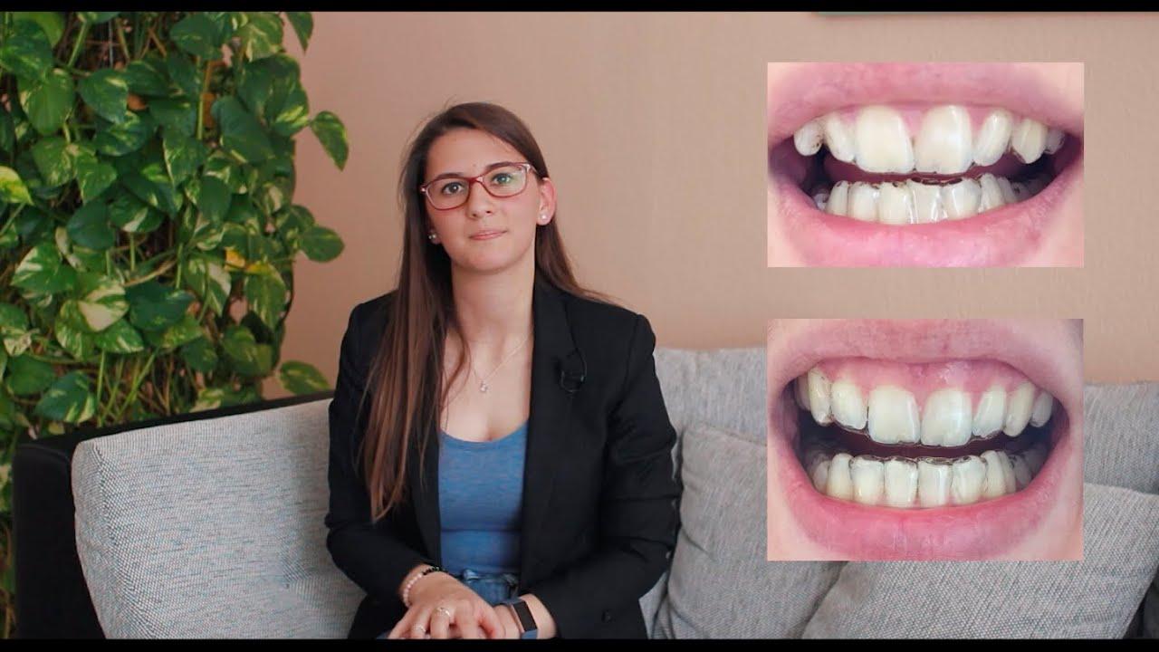 Schiefe zähne richten lassen