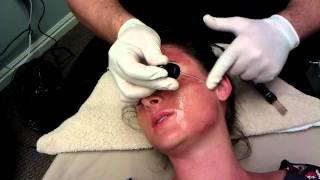 Dermapen Treatment at Utah Eye & Facial Plastic Surgery
