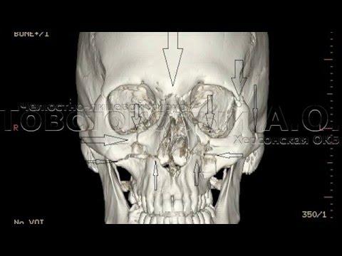 Перелом верхней челюсти: симптомы, признаки и лечение