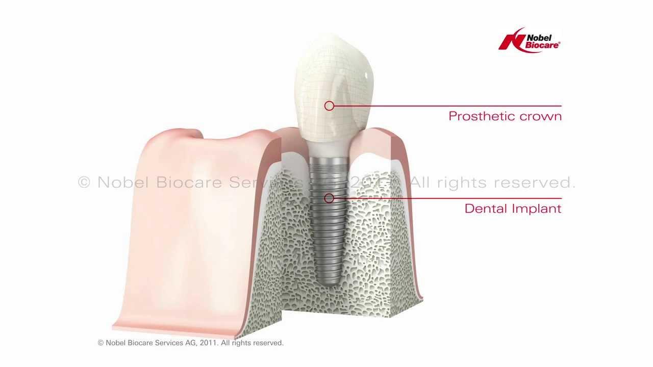 Nobel Biocare Single Dental Implant - YouTube