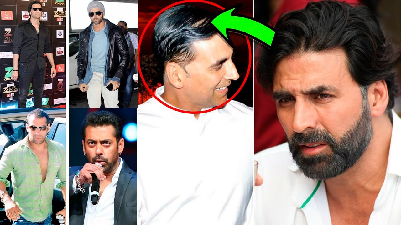 Who are the bald actors in Bollywood opted for hair ...