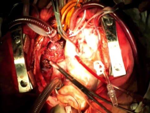 Опухоли. Часть 3. Классификация злокачественных опухолей