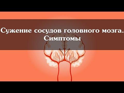Симптомы и лечение артериальной гипертонии
