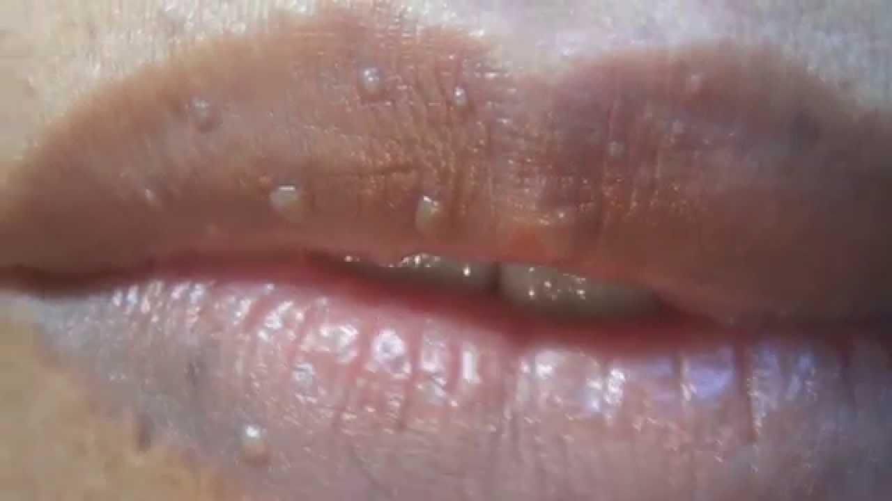 virus del papiloma labios)