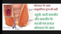 बवासीर  (Piles) के इलाज के लिए फोरेवर में कोन से प्रोडक्ट इस्तेमाल करें