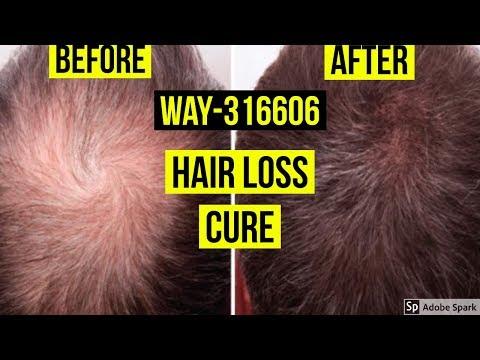 WAY-316606: THE NEXT HAIR LOSS CURE?