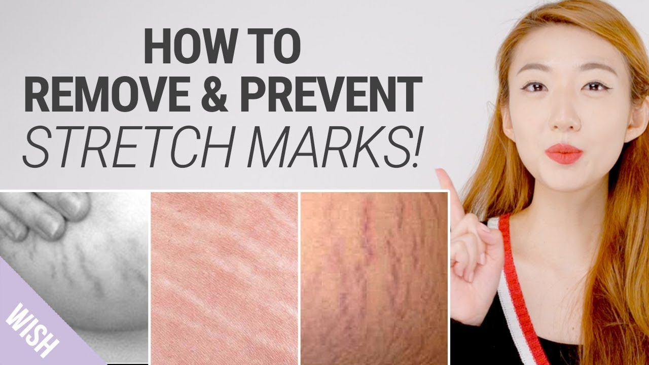 What Helps To Reduce Stretch Markss